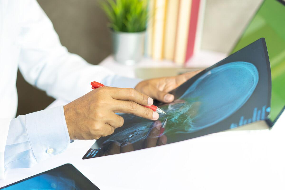 שפרגר ושות - עוסקים בתביעות נזיקין ותביעות ביטוח לאומי, רופא מחזיק צילום רנטגן